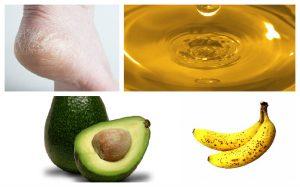 como curar rachaduras nos pes